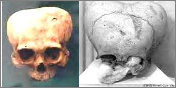 Apple Shaped Skulls