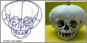 Apple Shaped Skull & Diagram